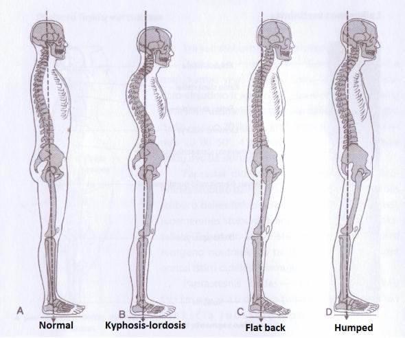 posture-problems1